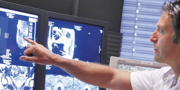 蔡司桥式测量机ACCURA应用案例之AGFA医疗