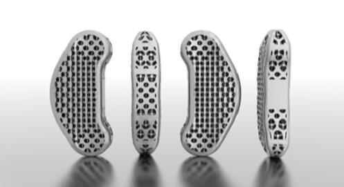 3dprinted_Spine-implant.jpg