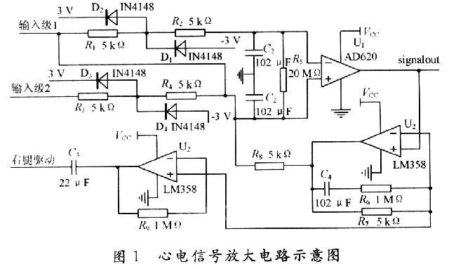 摘 要:针对实时监测心电信号对心电分析有重大意义。设计了一种心率监测方法,经导联输入从体表获得的心电信号先经滤波器滤除高频干扰再经一个50 Hz陷波器进一步抑制电源干扰,然后进入MSP430单片机的A/D转换得到数字化的心电信号。电路抗50 Hz陷波性能好,噪声小,整个电路经Electronics Workbench仿真观察波形基本无失真。经试验验证监测仪显示心电信号清晰稳定,基本满足临床监护以及病理分析的要求。 关键词:心电放大电路;波形仿真;低噪声;滤波器;数据采集 0 引 言     监护仪是一种用